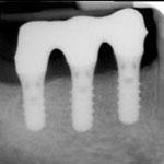 Zahnheilkunde Gaa Köln Braunsfeld |Implantat Unterkiefer