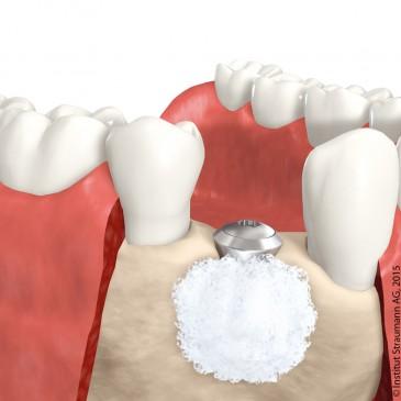 Zahnheilkunde Gaa Köln Braunsfeld |Implantat Knochen