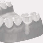 Zahnheilkunde Gaa Köln Braunsfeld | Implantologie 2