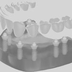 Zahnheilkunde Gaa Köln Braunsfeld | Implantologie 3