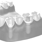 Zahnheilkunde Gaa Köln Braunsfeld | Parodontologie Ablauf 4