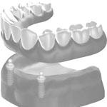 Zahnheilkunde Gaa Köln Braunsfeld | Implantologie 5