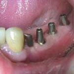 Zahnheilkunde Gaa Köln Braunsfeld | Implantologie A